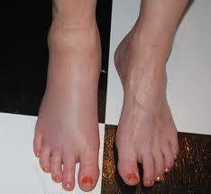 wass inflam feet