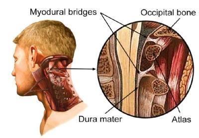Muscle Dura Bridge
