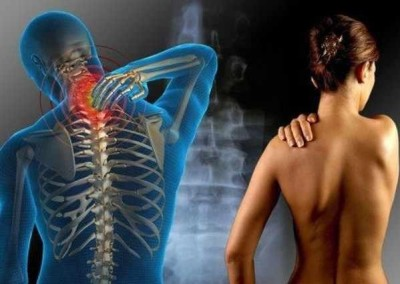 #8 Structural Shifts and Abnormal Pain Perception
