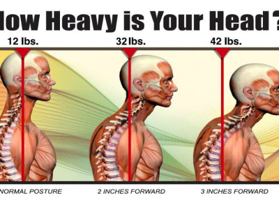 Does Your Neck Look Like This?