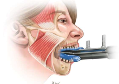 Dentists, jaw pain and Chiropractic